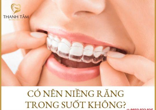 có nên niềng răng trong suốt