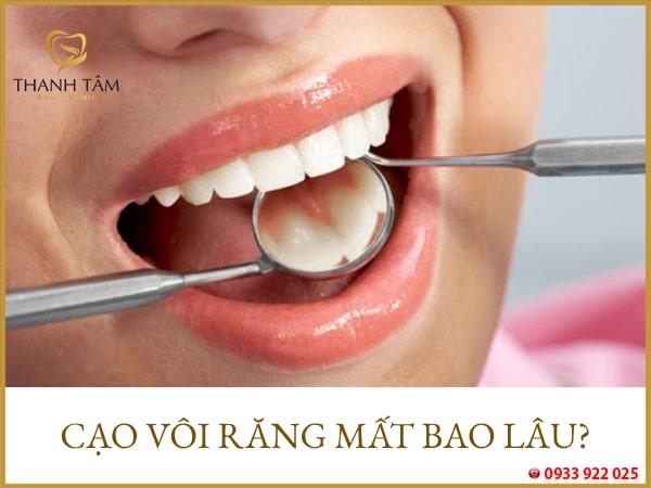 Cạo vôi răng bao lâu