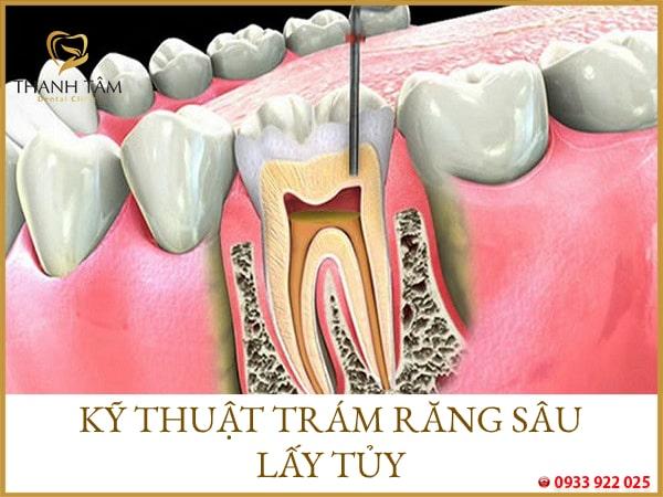 Trám răng sâu lấy tủy