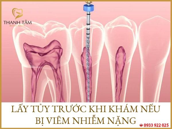 Khôi phục cấu trúc, chức năng răng