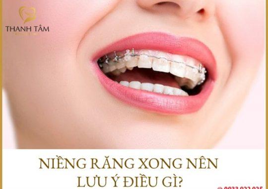 Niềng răng xong nên lưu ý điều gì