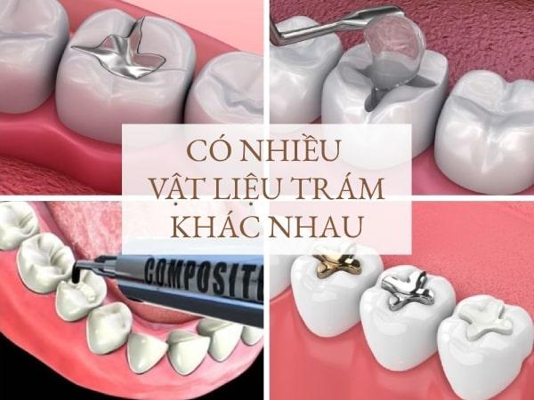 Các vật liệu trám răng