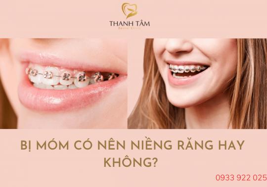 Bị móm có nên niềng răng hay không?