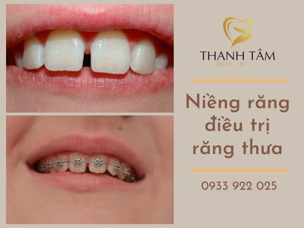 Răng thưa nên làm gì? Niềng răng điều trị răng thưa