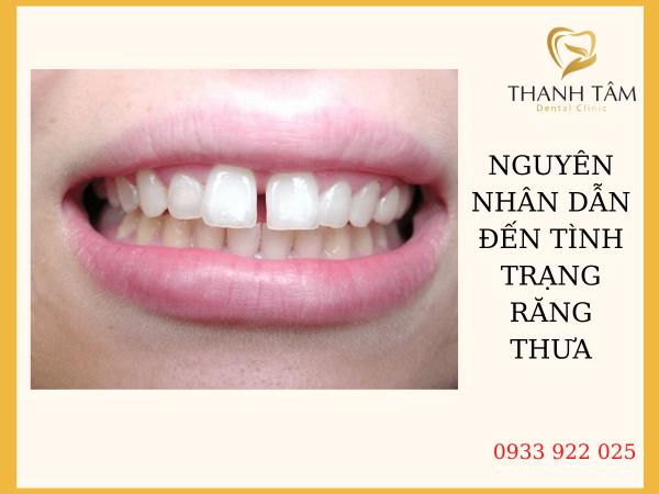 Nguyên nhân dẫn đến tình trạng răng thưa