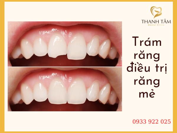 Trám răng điều trị răng mẻ