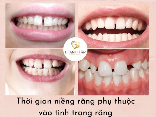 Kinh nghiệm niềng răng thưa phụ thuộc vào tình trạng răng