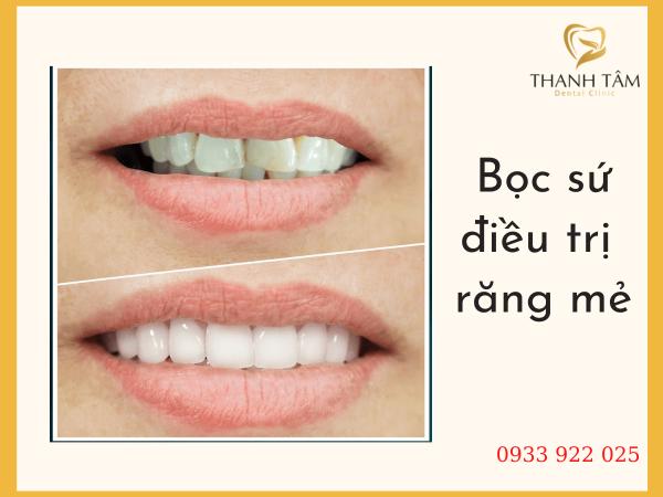 Bọc sứ điều trị răng rẻ