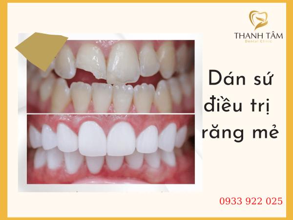 Dán sứ điều trị răng mẻ