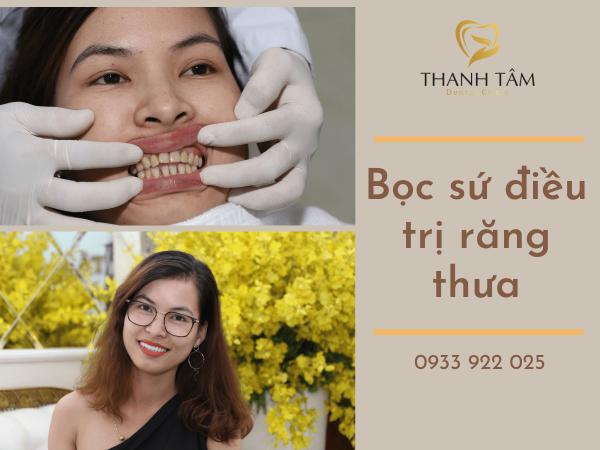 Bọc sứ điều trị răng thưa