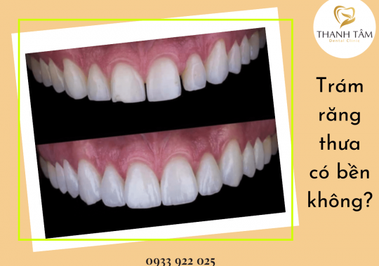 Trám răng thưa có bền không?