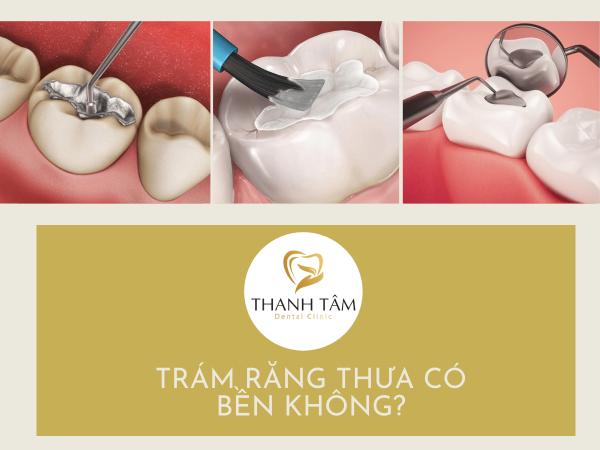 Trám răng có bền không?