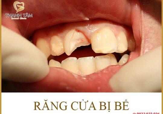 Răng bị bể