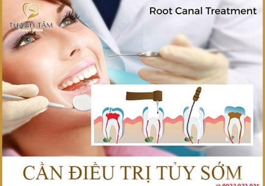 Chăm sóc răng đã lấy tủy