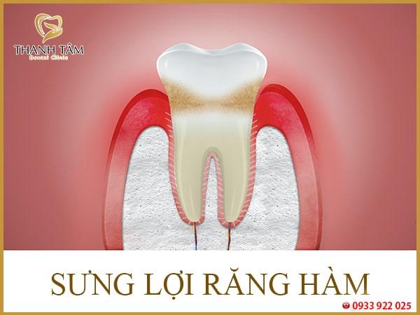 Sưng lợi răng hàm