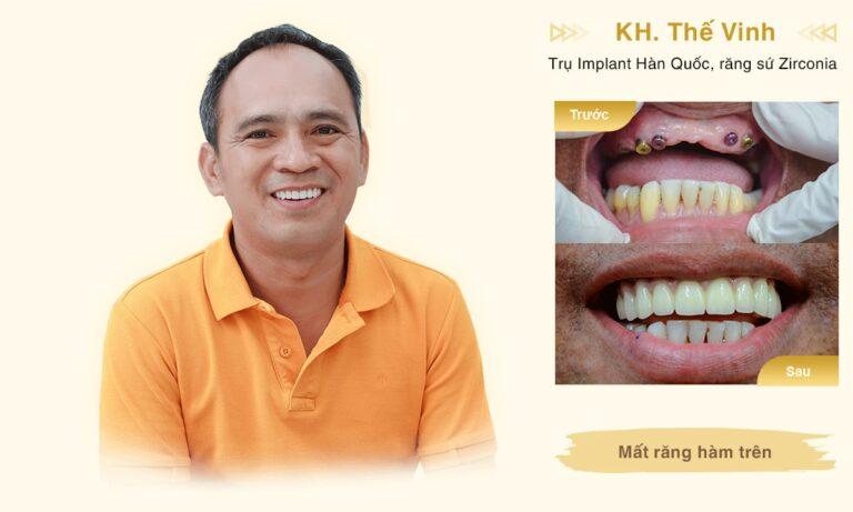 Implant KH The Vinh desktop min