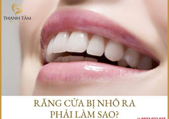 răng cửa bị nhô ra