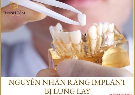 răng implant bị lung lay
