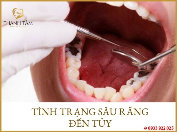 sâu răng viêm tủy