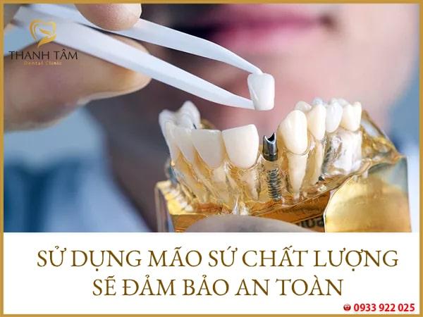 răng sứ trên implant