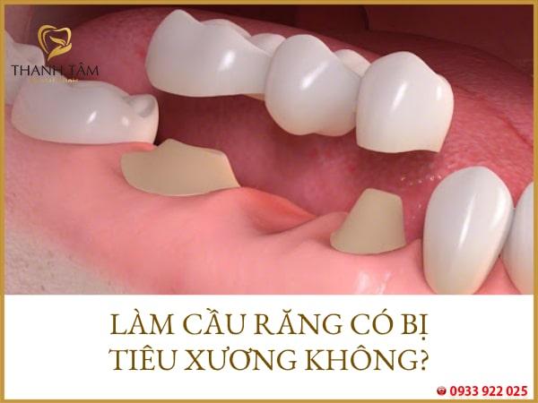 làm cầu răng có bị tiêu xương không