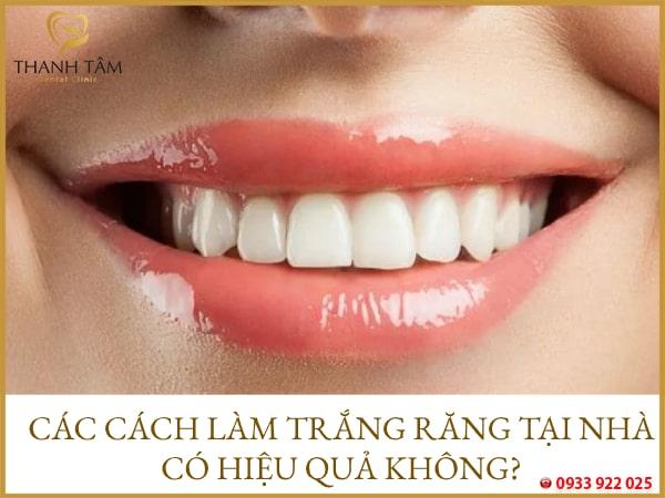 các cách làm trắng răng tại nhà