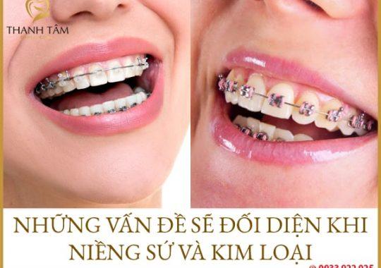 niềng răng sứ và kim loại