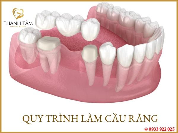 Quy trình làm cầu răng