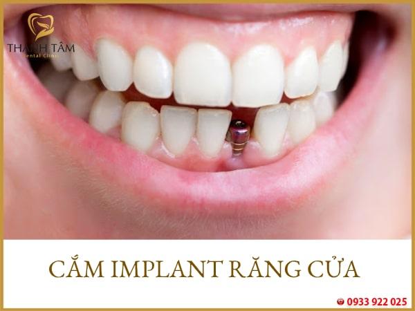 Cắm implant răng cửa