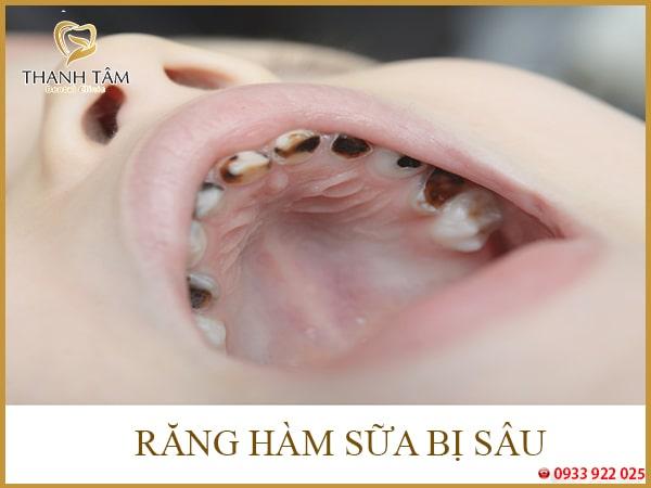 Răng hàm sữa bị sâu