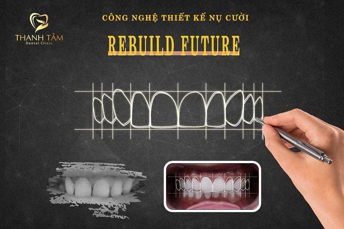 rebuild future17092412