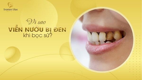 Bọc răng sứ bị đen viền nướu