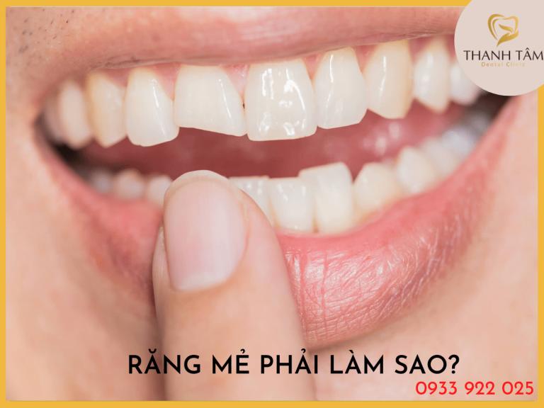 Răng mẻ phải làm sao?