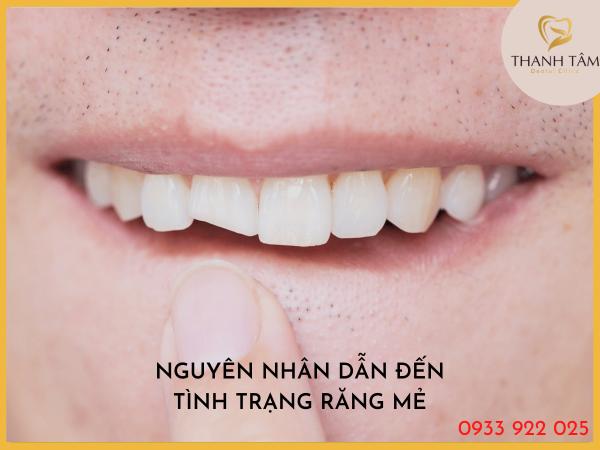 Nguyên nhân dẫn đến tình trạng răng mẻ