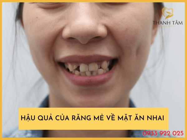 Hậu quả của răng mẻ phải làm sao