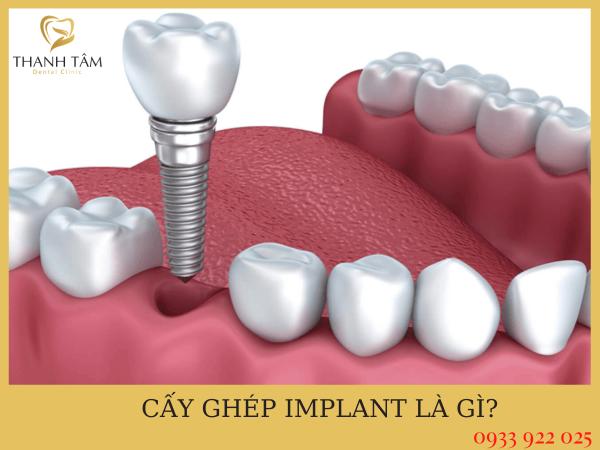 Những lưu ý sau khi cắm Implant