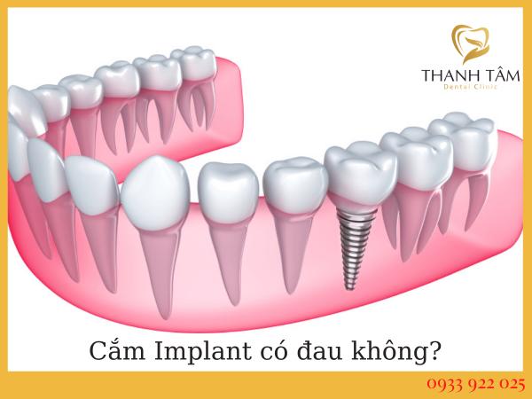 Cắm implant có đau không?