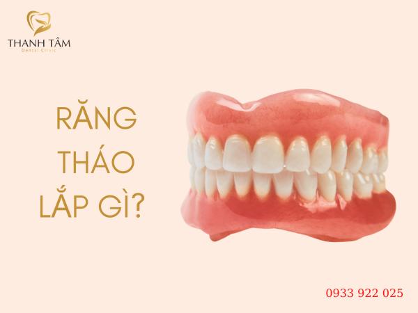 Răng tháo lắp là gì?