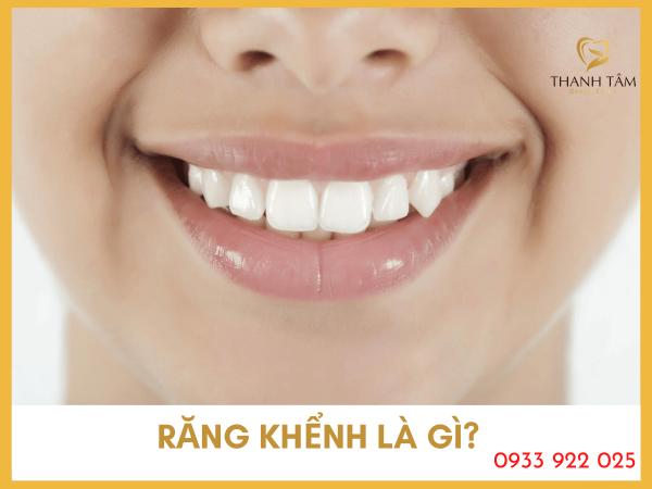 Răng khểnh là gì?
