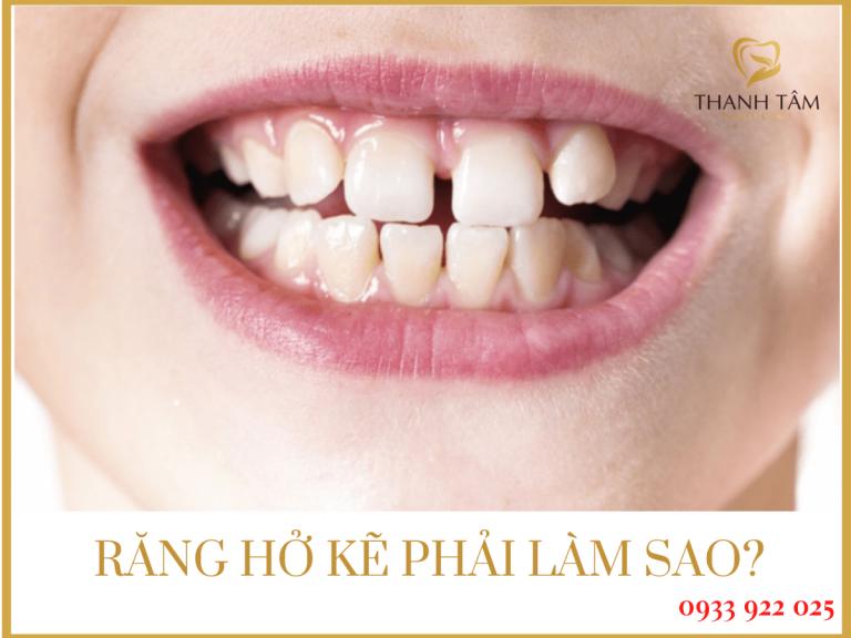 Răng hở kẽ phải làm sao?