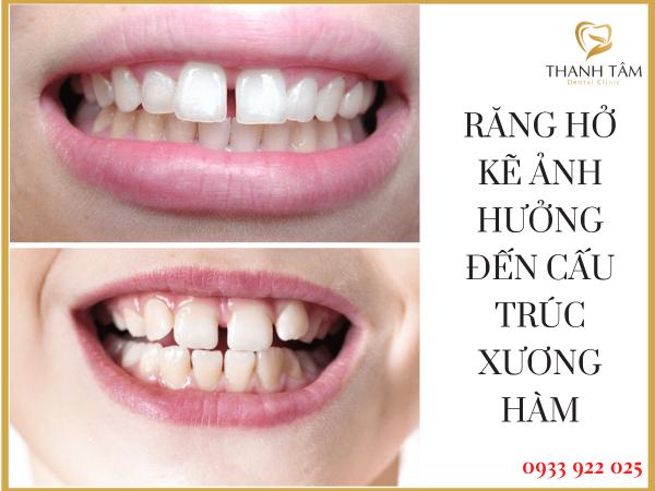 Răng hở kẽ ảnh hưởng đến cấu trúc xương hàm