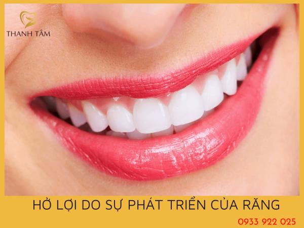 Hở lợi do sự phát triển của răng