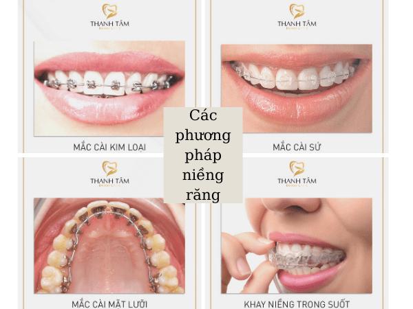 Top các kiểu niềng răng