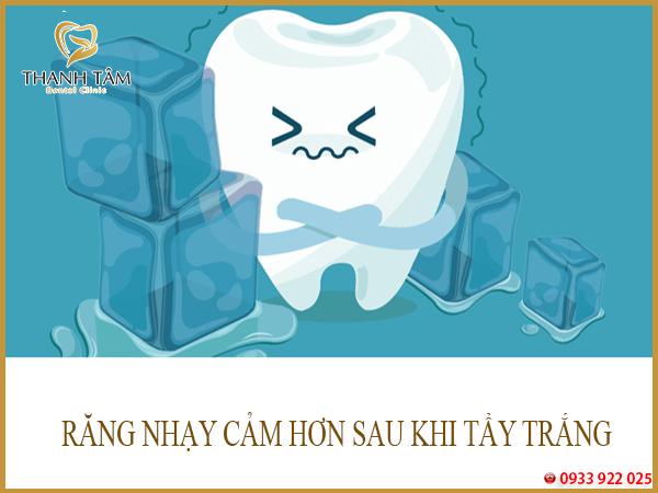 RANG NHAY CAM