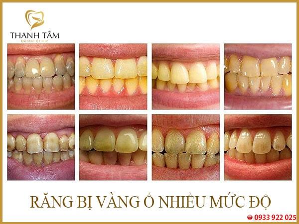 các mức độ vàng răng
