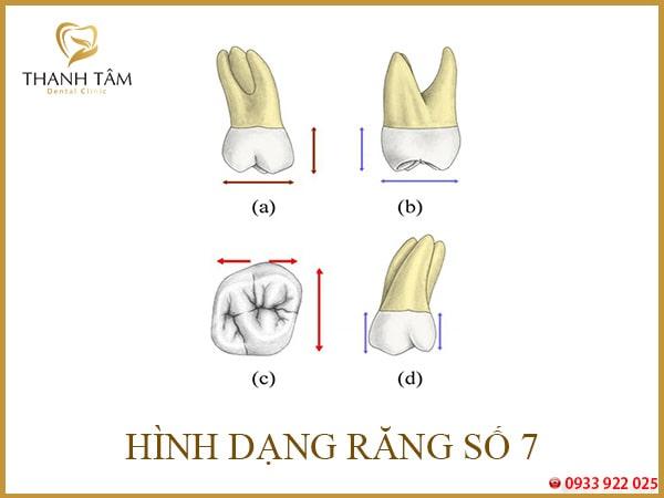 Mất răng số 7