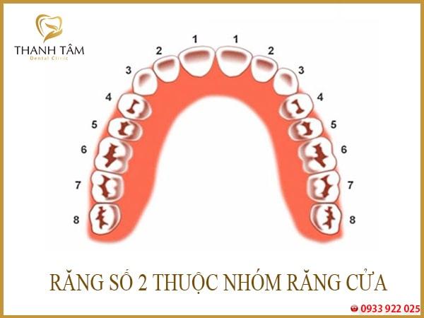 Thiếu răng số 2