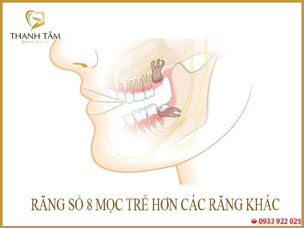Biến chứng răng số 8