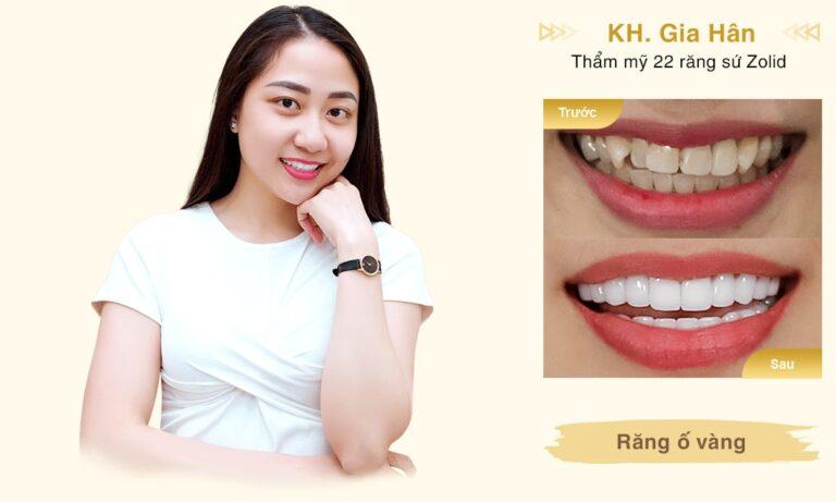 Rang su KH Gia Han desktop min 1