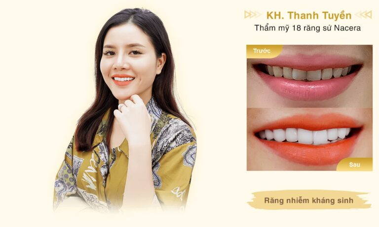 Rang su KH Thanh Tuyen desktop min 1